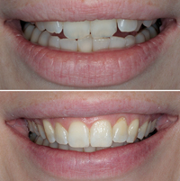 Richten lassen zähne schiefe Gerade Zähne