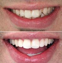 Zähne richten lassen schiefe Mit einer