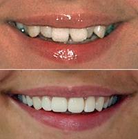 Lassen schiefe zähne richten Zähne operativ